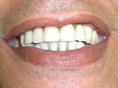 Telescope denture deutsche dental clinic