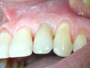 implantat7